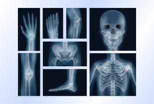 أفلام تصوير أشعة